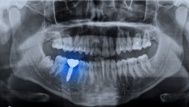 5 Things To Know About Dental Implants